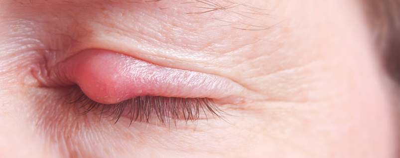 How To Get Rid Of A Chalazion Naturally