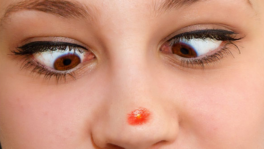 How To Get Rid Of Huge Pores On Nose At Home