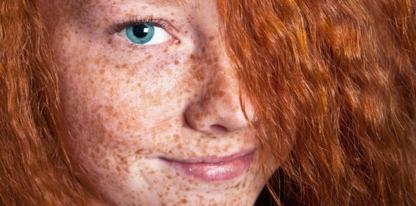 How To Get Rid Of Freckles Fast